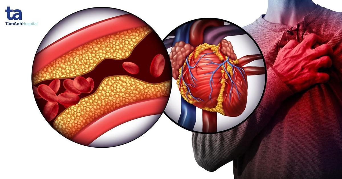 Bệnh mạch vành nằm trong nhóm bệnh lý gây tử vong nhiều tại Việt Nam.