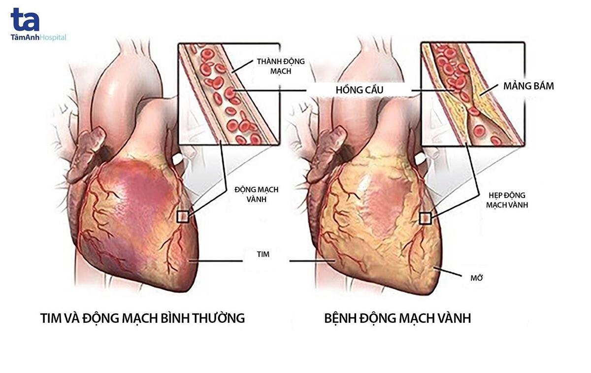 Hình ảnh mô tả trường hợp tim, động mạch bình thường và trường hợp bệnh động mạch vành.