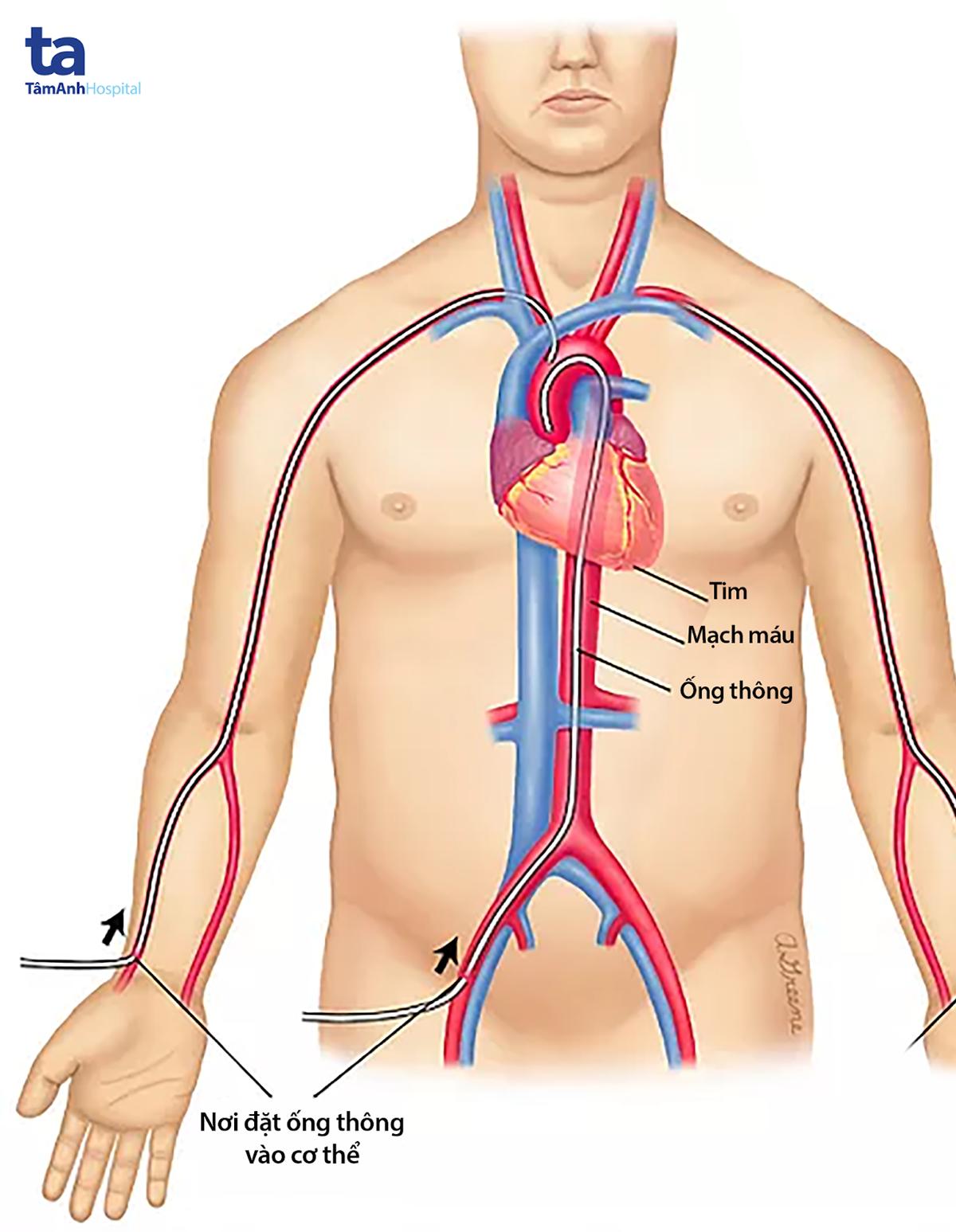 Ống thông được đưa vào mạch máu ở tay qua động mạch quay.