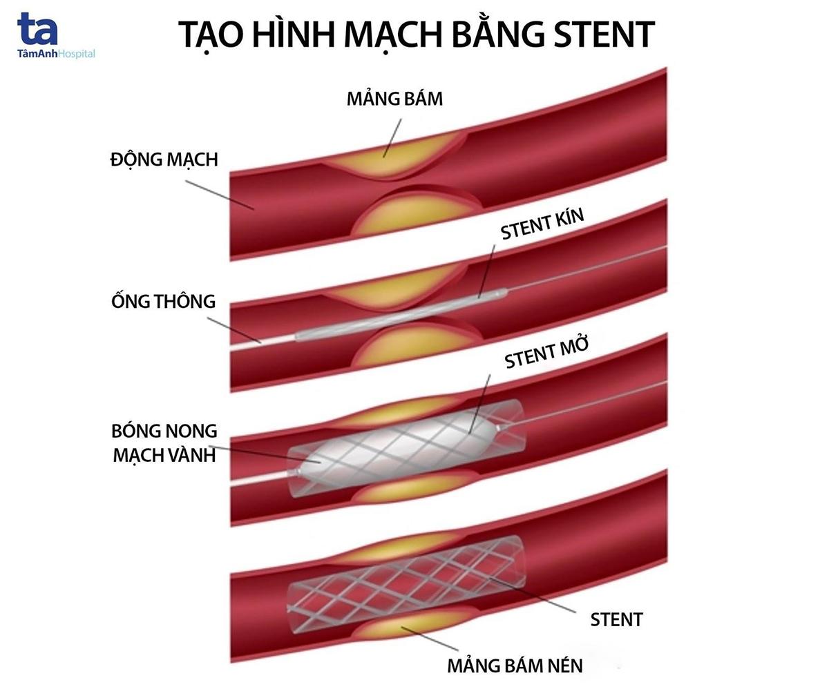 Stent có thể nong rộng tùy theo kích thước mạch máu.