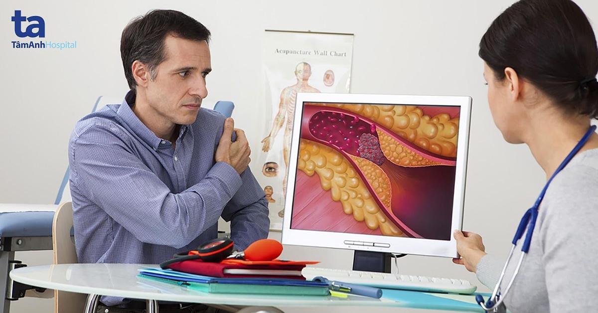 Bác sĩ sẽ căn cứ trên tình trạng bệnh lý để quyết định có thực hiện đo phân suất dự trữ mạch vành cho người bệnh hay không.
