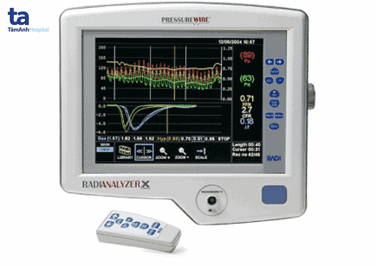 Kết quả đo phân suất dự trữ lưu lượng mạch vành.