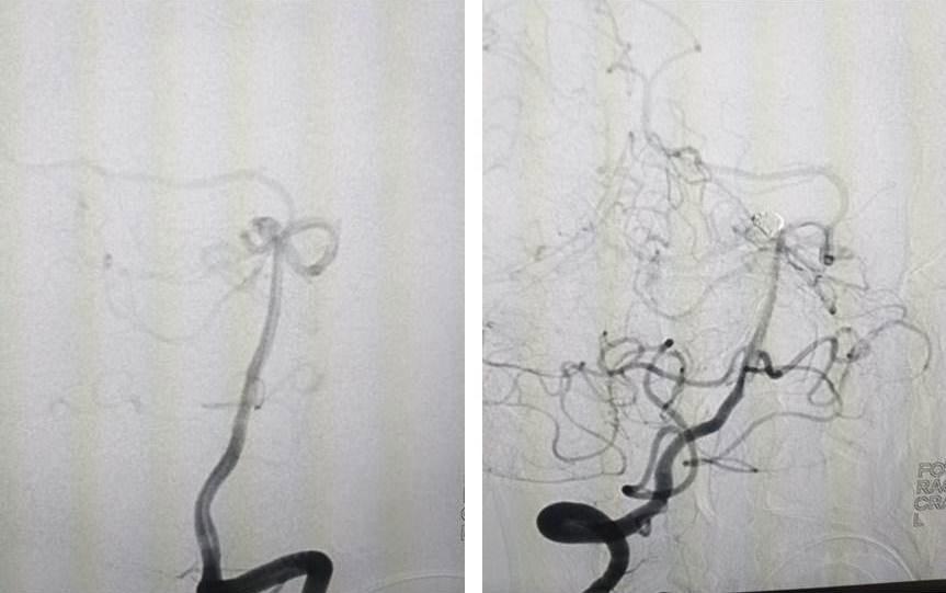 Hình ảnh chụp trước và sau khi can thiệp cho bệnh nhân bị vỡ túi phình mạch mão. Ảnh: Bệnh viện cung cấp