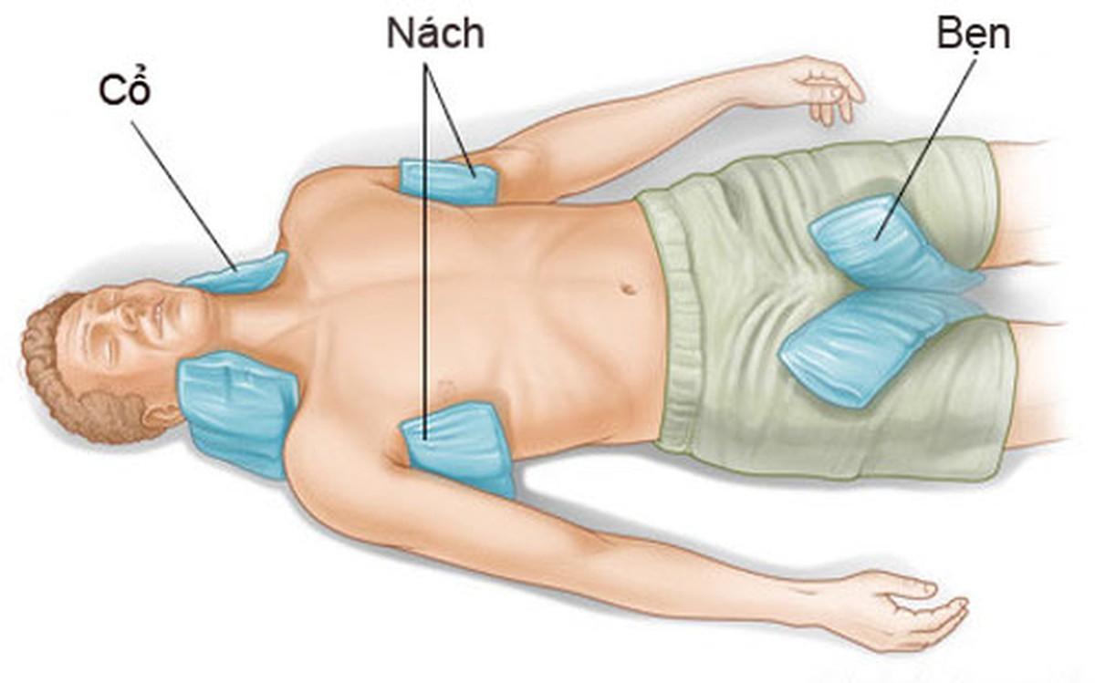 Chườm lạnh bằng khăn mát, nước đá ở cổ, nách, bẹn sẽ giúp hạ thân nhiệt nhanh cho người say nắng. Ảnh: Examiner.