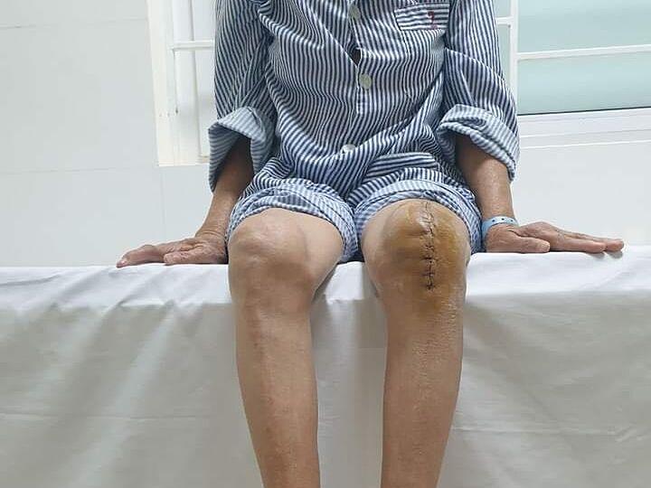 Sau hơn một tuần thay khớp, người bệnh đã có thể bước đi, không cần sử dụng dụng cụ hỗ trợ. Ảnh: Bệnh viện cung cấp.