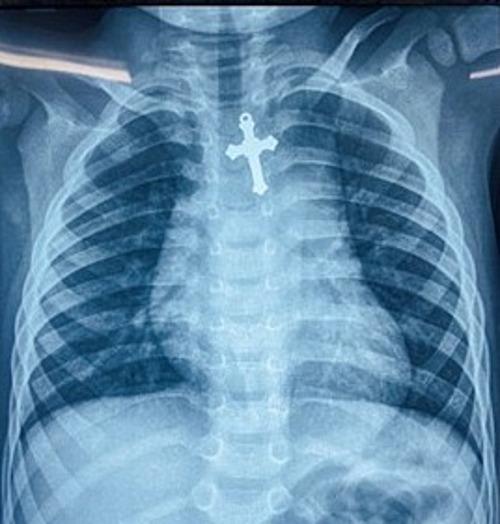 Mặt dây chuyền kim loại trên phim Xquang của bé trai. Ảnh do bệnh viện cung cấp.