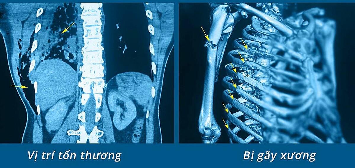 Hình ảnh đa chấn thương ở người bệnh, như dập phổi, tràn khí dưới da, gãy xương cánh tay, gãy cung xương sườn. Ảnh do bệnh viện cung cấp.
