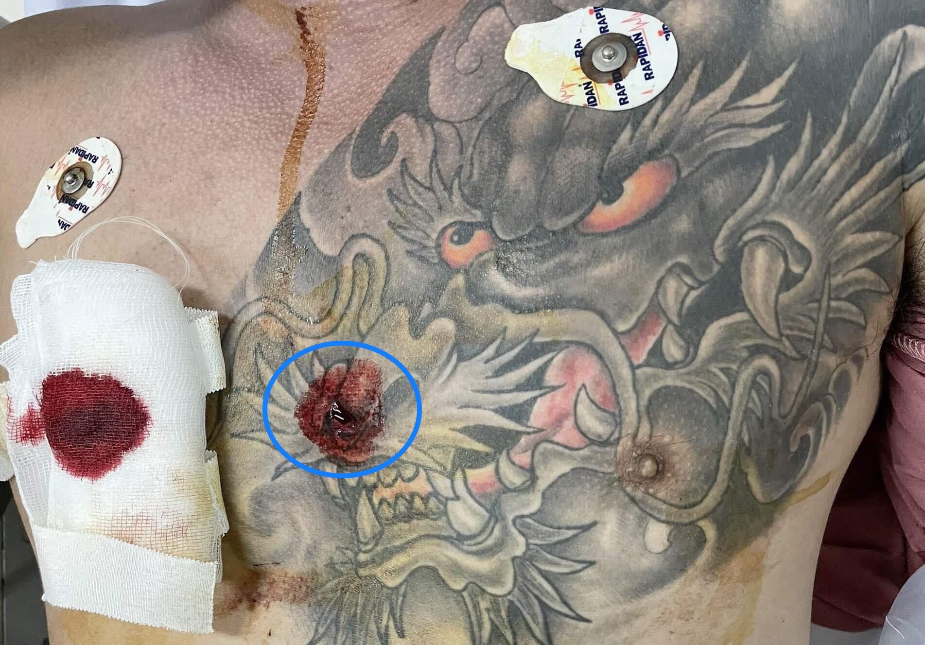 Vết đâm nhỏ giữa ngực nhưng chí mạng. Ảnh: Bệnh viện cung cấp.