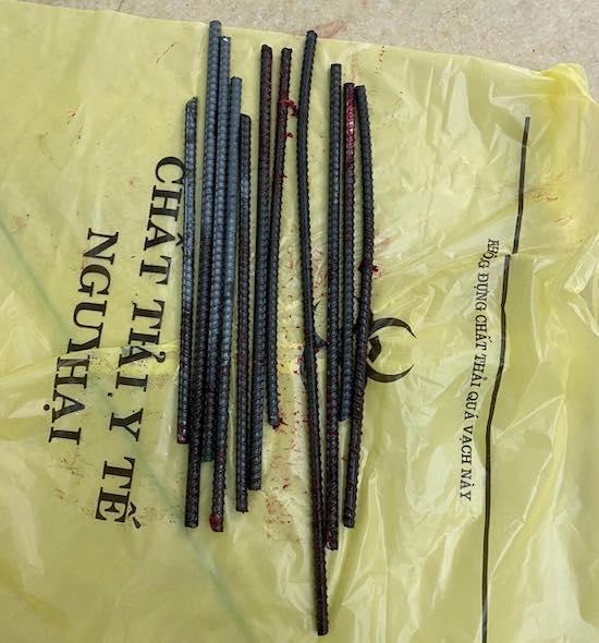 Các thanh sắt được lấy ra sau khi phẫu thuật cho bệnh nhân. Ảnh: Do bệnh viện cung cấp