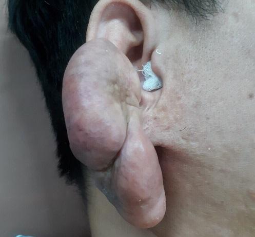 Khối u sụn vành tai với kích thước khủng do chủ quan không điều trị. Ảnh: Bệnh viện cung cấp