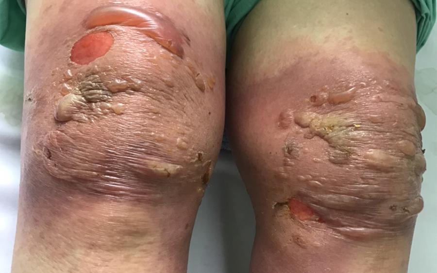 Hai đầu gối của bệnh nhân khi mới nhập viện tuần trước. Ảnh do bệnh viện cung cấp.