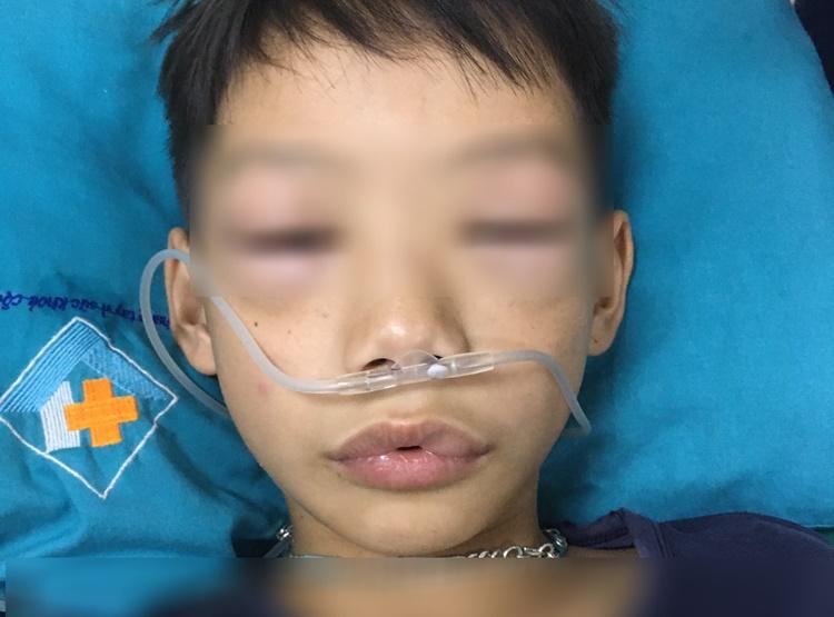Tình trạng sưng phù nề mặt của bệnh nhi sau khi uống thuốc tự mua. Ảnh: Bệnh viện cung cấp