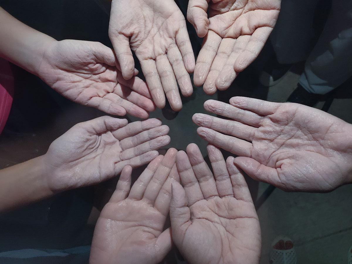 Bàn tay Hà và các bạn trắng bệch, nhắn nheo sau nhiều giờ đeo găng làm việc trong thời tiết nắng nóng ở tâm dịch. Ảnh: Nhân vật cung cấp
