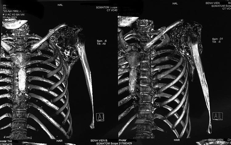 Hình ảnh khối u ác tính rất khó can thiệp của bệnh nhân. Ảnh: Bác sĩ cung cấp