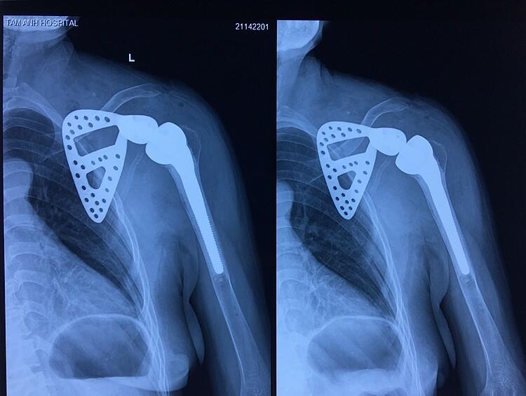 Hình ảnh vai bệnh nhân sau khi ghép đồng thơi xương bả vai và khớp nhân tạo. Ảnh: Bác sĩ cung cấp