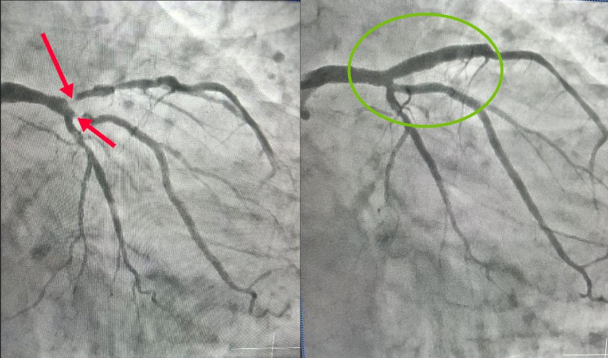 Hình ảnh mạch vành bị hẹp (bên trái) dẫn đến cơn nhồi máu cơ tim và sau khi được tái thông thành công. Ảnh: Bệnh viện cung cấp.