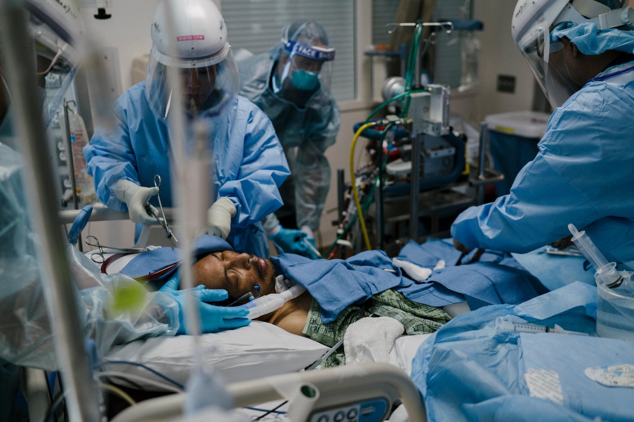 Một bệnh nhân Covid-19 62 tuổi được điều trị tại Bệnh viện Giám lý Houston, Mỹ, tháng 6/2020. Ảnh: NY Times