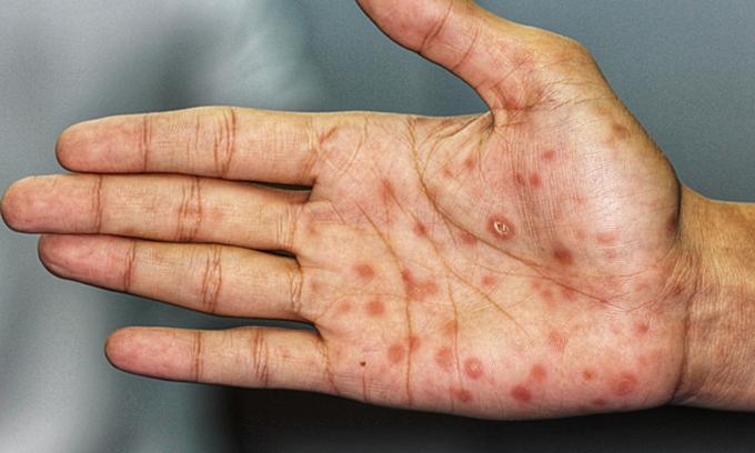 Nốt vảy đỏ ở bàn tay là dấu hiệu của bệnh giang mai. Ảnh:Buoy Health.