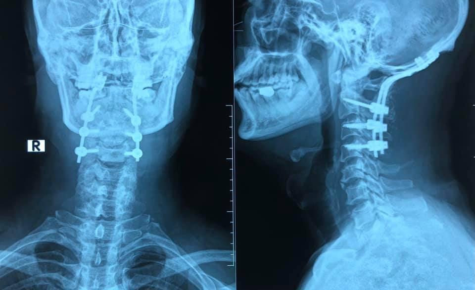 Phim chụp bệnh nhân được cố định, làm vững cột sống. Ảnh: Bác sĩ cung cấp.