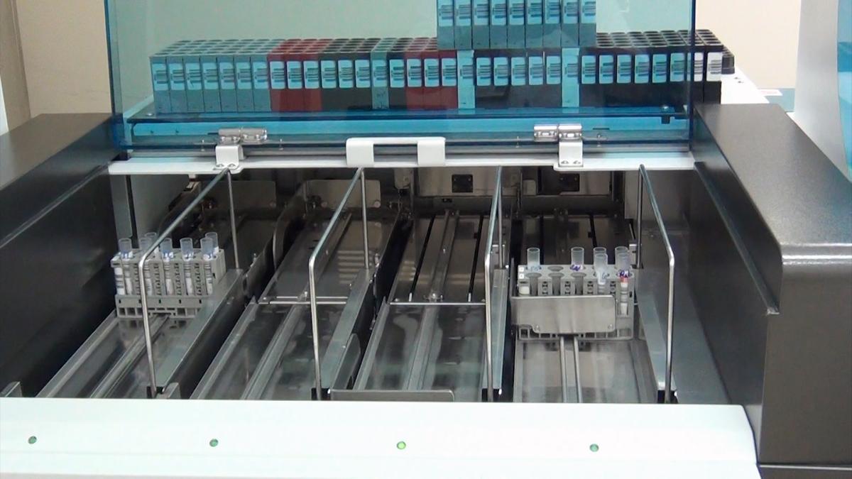 Hệ thống máy xét nghiệm định lượng kháng thể tại Bệnh viện Chợ Rẫy. Ảnh: Bệnh viện cung cấp