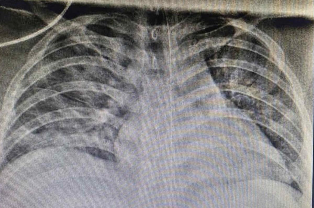 Ảnh chụp X-quang cho thấy phổi bệnh nhi tổn thương nặng cả hai bên do Covid-19. Ảnh: Bệnh viện Nhi đồng Thành phố