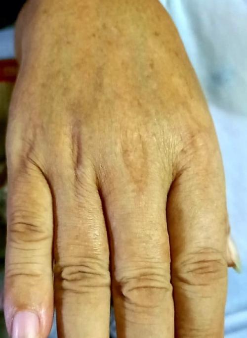 Một bệnh nhân ngộ độc Paracetamol dẫn dến vàng da. Ảnh: Bác sĩ cung cấp