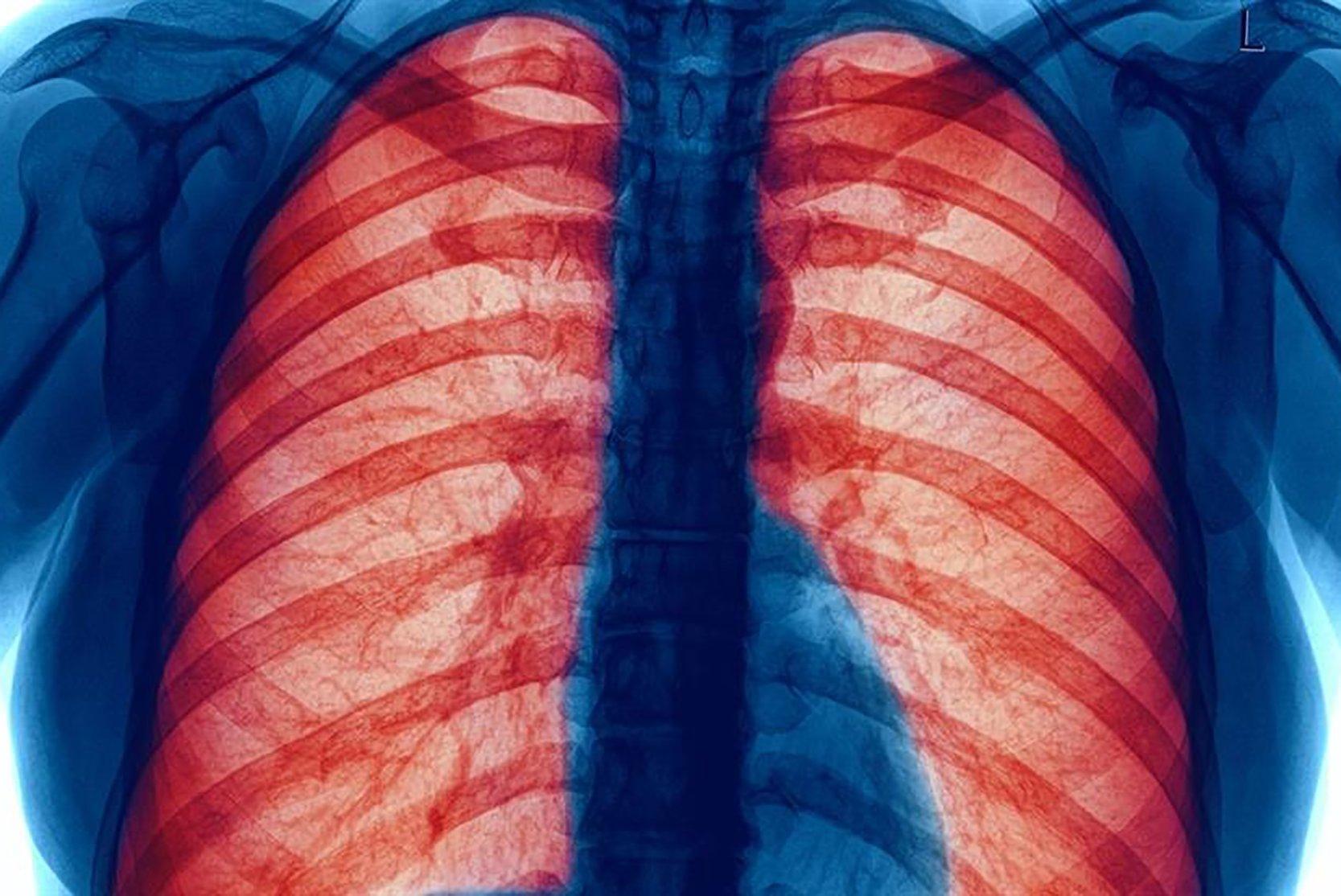 Người mắc BPTNMT cần cẩn trọng trước dịch bệnh Covid-19. Ảnh: BVĐK Tâm Anh