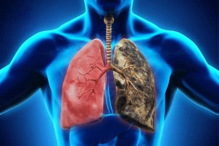 Tập thở là một trong những giải pháp phục hồi chức năng hô hấp. Ảnh: Shutterstock.