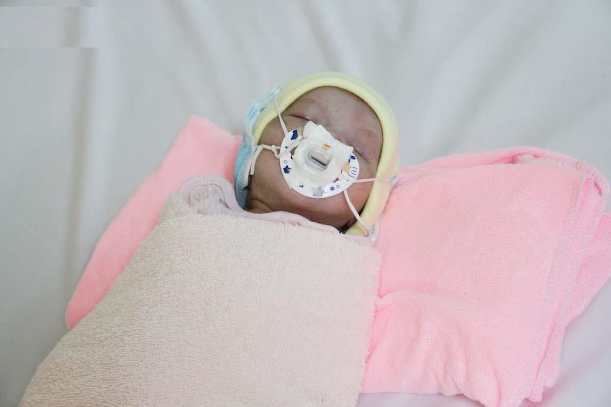 Hiện tình trạng sức khỏe bé đã cải thiện và ổn định. Ảnh. Bệnh viện cung cấp