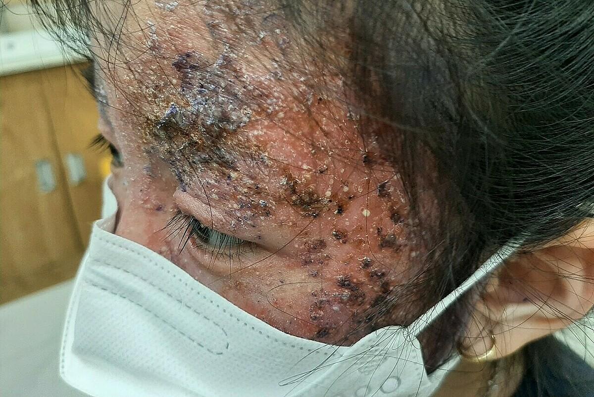 Bé gái đến khám tại Bệnh viện Da liễu TP HCM khi tổn thương da đã lan rộng. Ảnh: Lan Anh.
