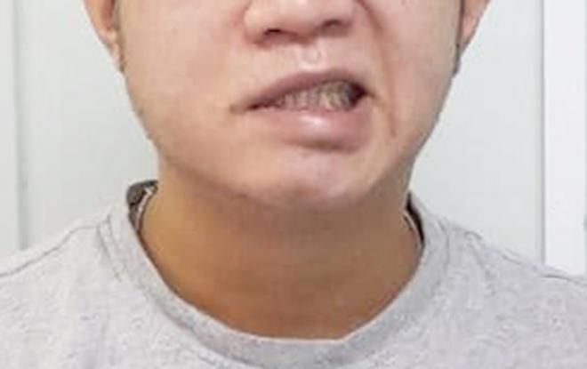 Bệnh nhân bị méo miệng do liệt dây thần kinh số 7, đến khám tại bệnh viện. Ảnh: Thu Ngô